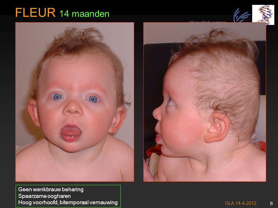 FLEUR 14 maanden Geen wenkbrauw beharing Spaarzame oogharen