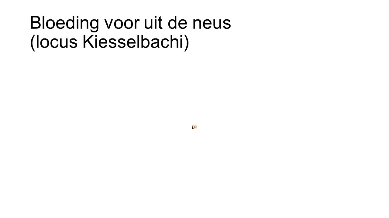 Bloeding voor uit de neus (locus Kiesselbachi)
