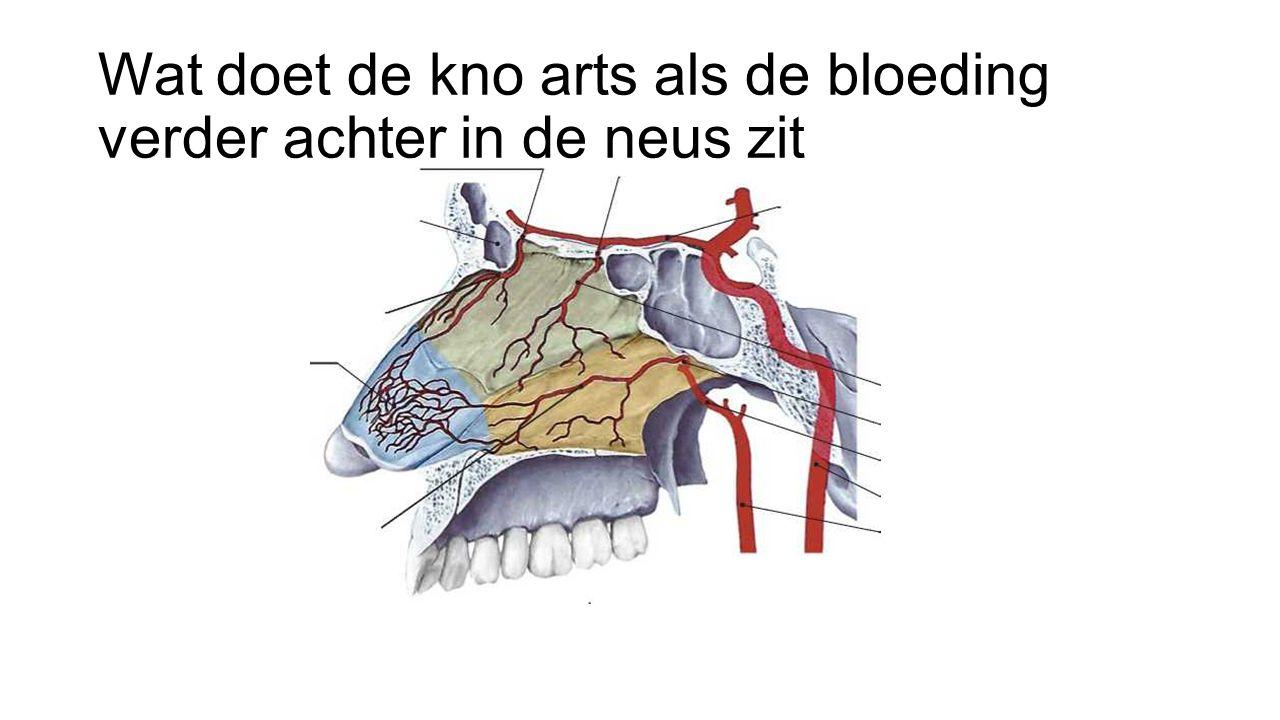 bloedprop in neus na bloedneus