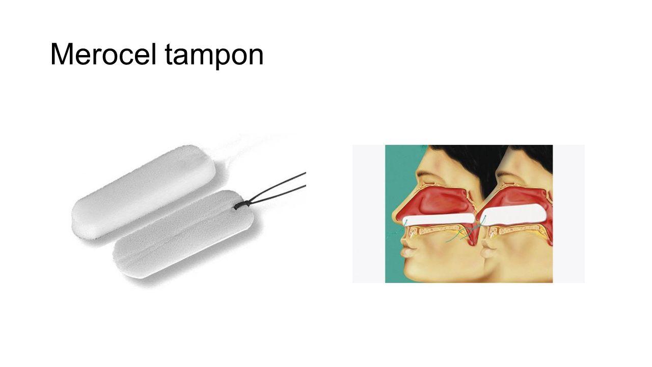Merocel tampon