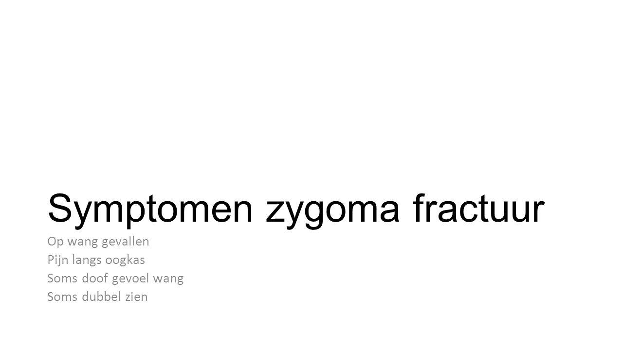 Symptomen zygoma fractuur