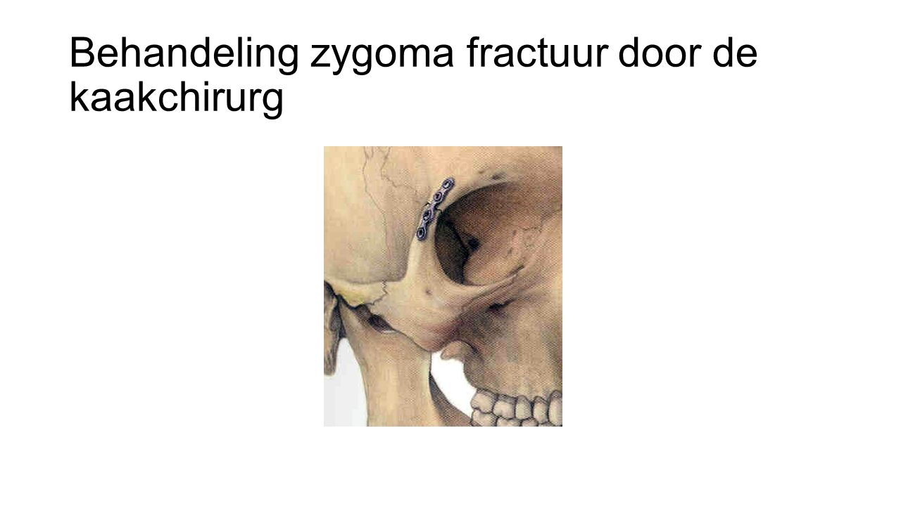 Behandeling zygoma fractuur door de kaakchirurg