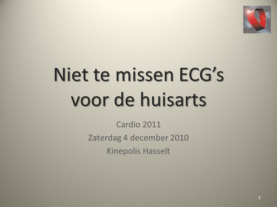 Niet te missen ECG's voor de huisarts