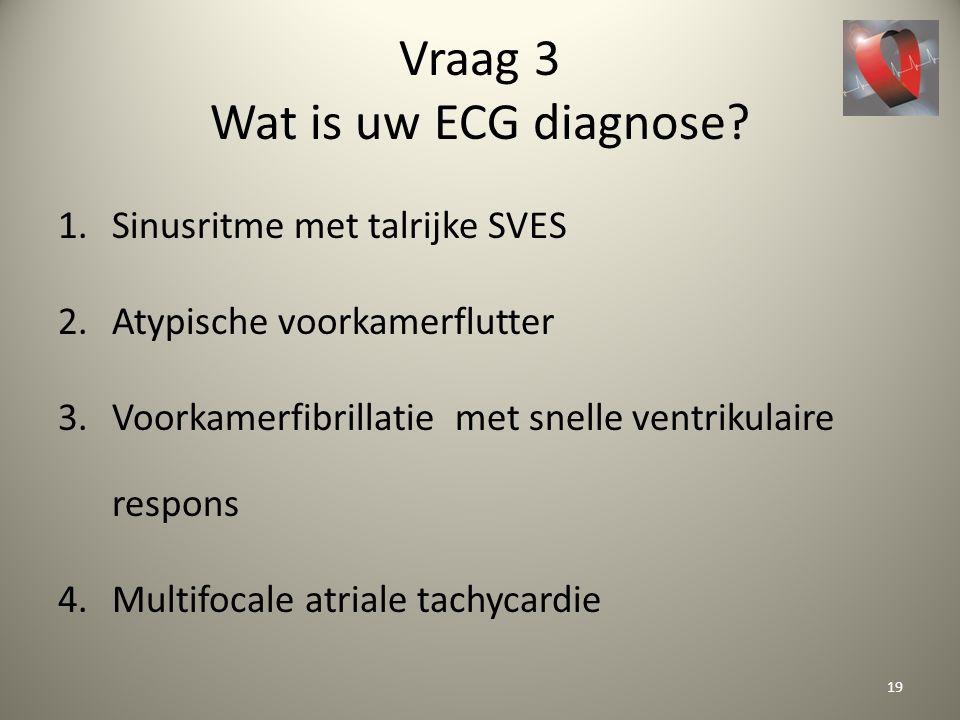 Vraag 3 Wat is uw ECG diagnose