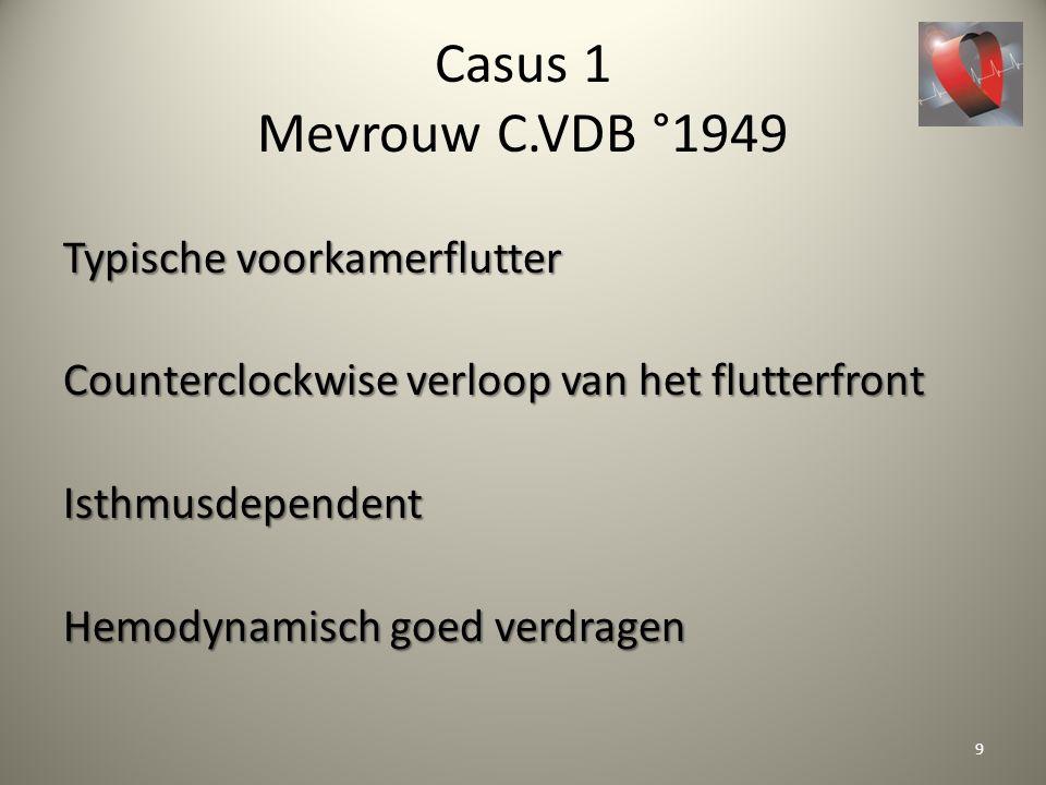Casus 1 Mevrouw C.VDB °1949 Typische voorkamerflutter Counterclockwise verloop van het flutterfront Isthmusdependent Hemodynamisch goed verdragen