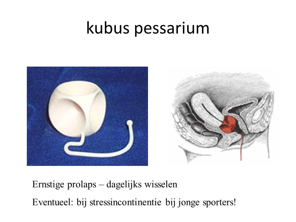 kubus pessarium Ernstige prolaps – dagelijks wisselen
