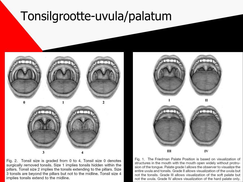 Tonsilgrootte-uvula/palatum