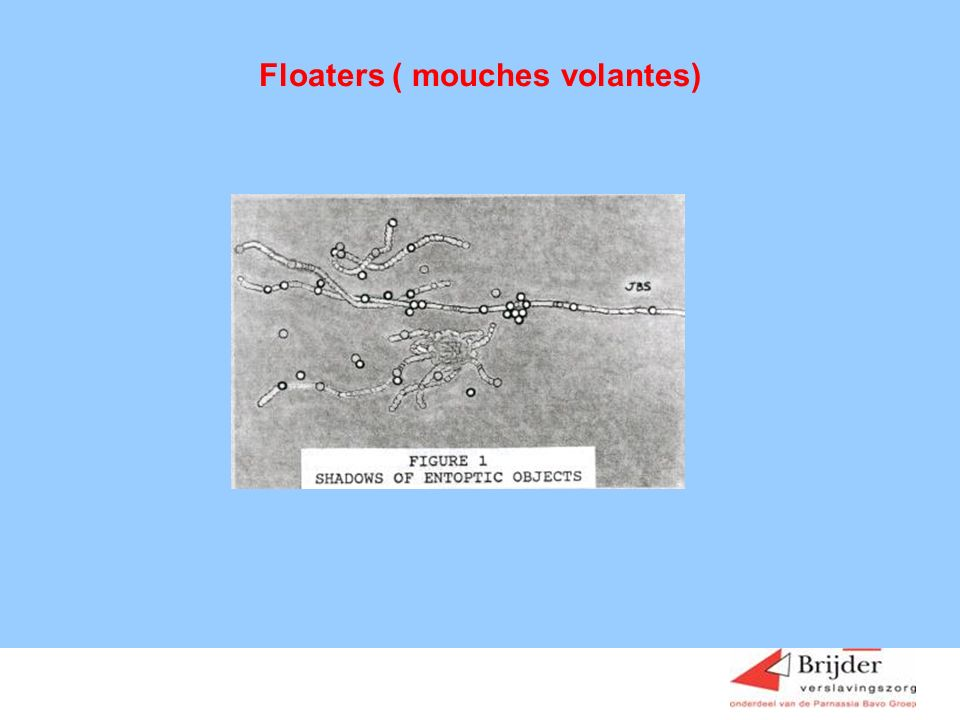 Floaters ( mouches volantes)