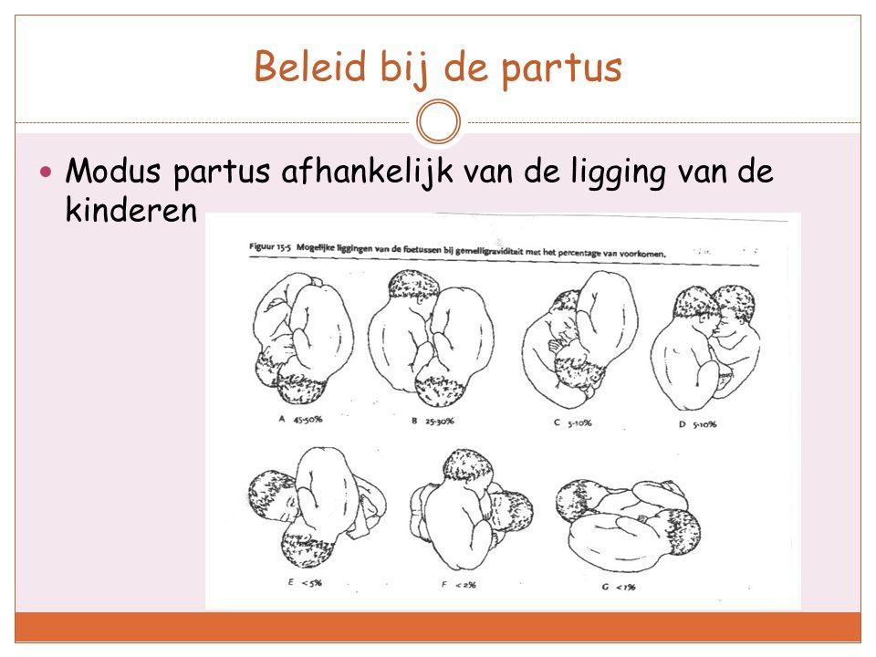 Beleid bij de partus Modus partus afhankelijk van de ligging van de kinderen.