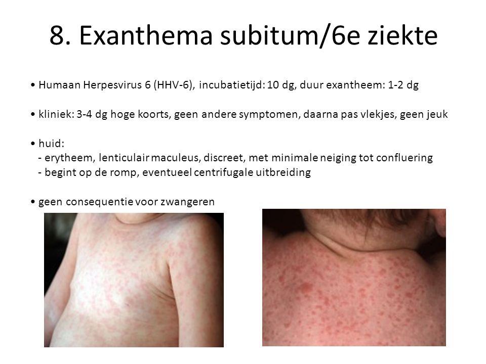 8. Exanthema subitum/6e ziekte