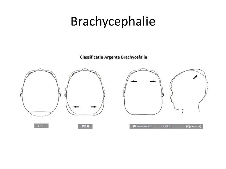 Brachycephalie Komt vaker voor sinds advisering rugligging ivm preventie wiegendood