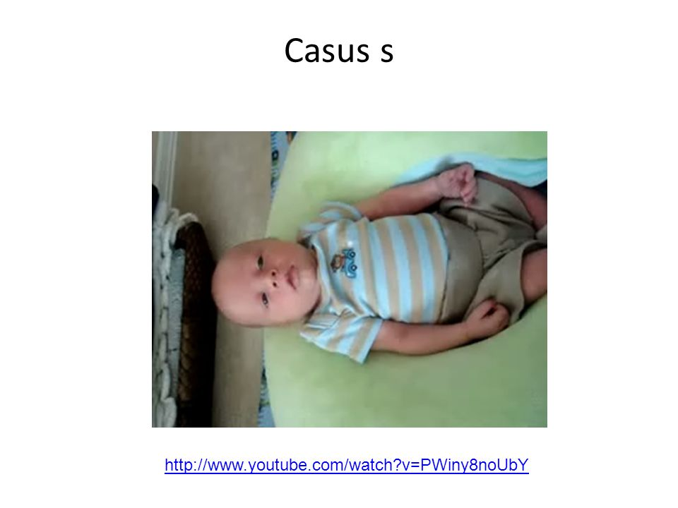Casus s http://www.youtube.com/watch v=PWiny8noUbY