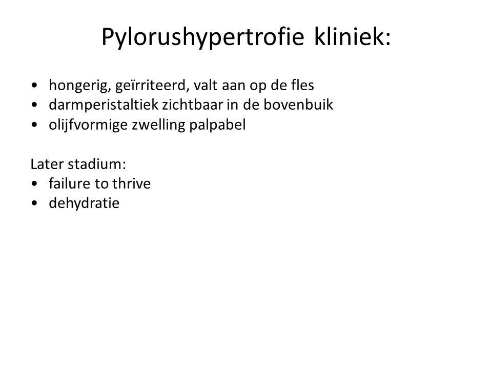Pylorushypertrofie kliniek:
