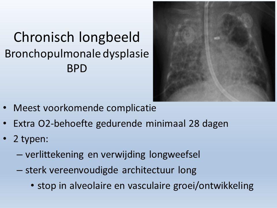 Chronisch longbeeld Bronchopulmonale dysplasie BPD