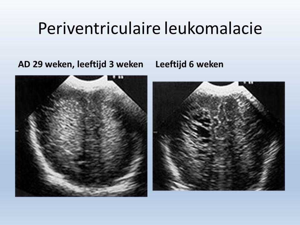 Periventriculaire leukomalacie