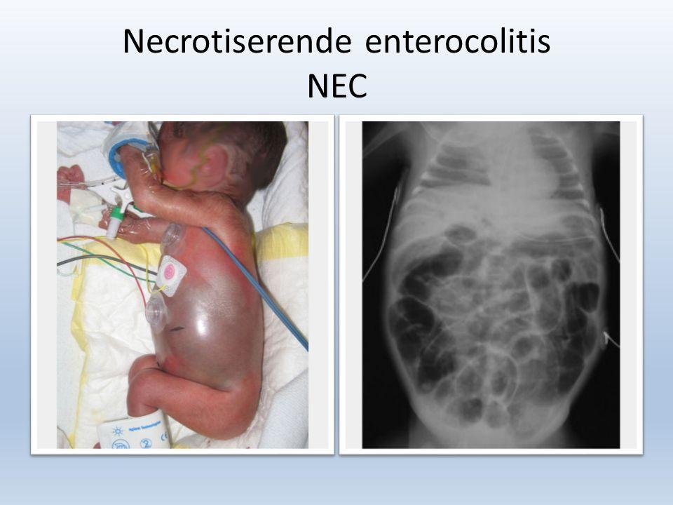 Necrotiserende enterocolitis NEC