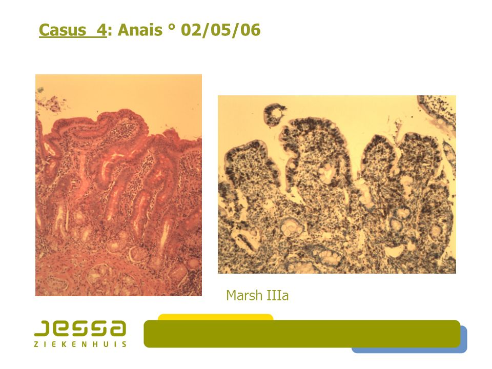 Casus 4: Anais ° 02/05/06 Marsh IIIa 32
