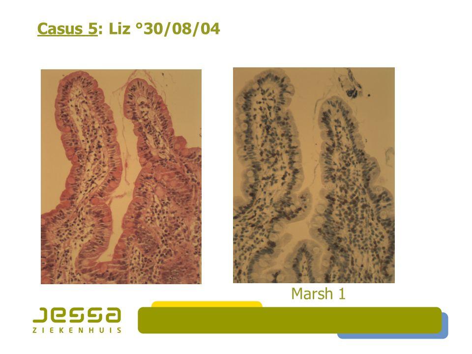 Casus 5: Liz °30/08/04 Marsh 1 40