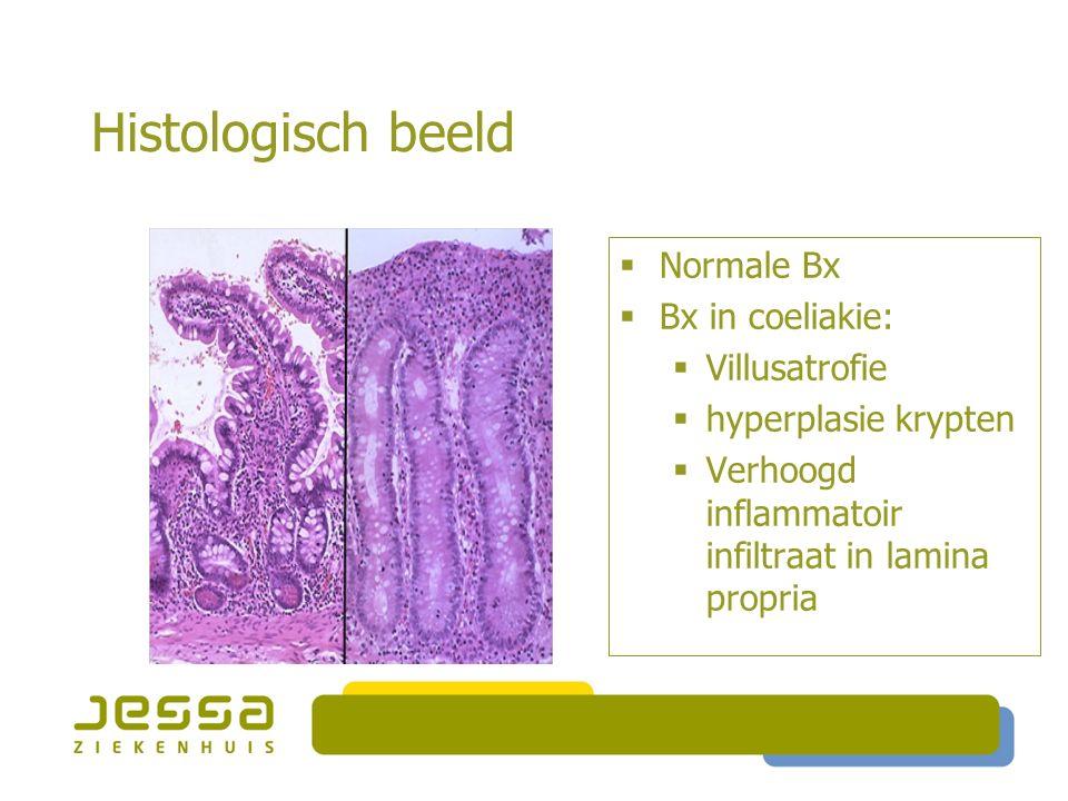 Histologisch beeld Normale Bx Bx in coeliakie: Villusatrofie