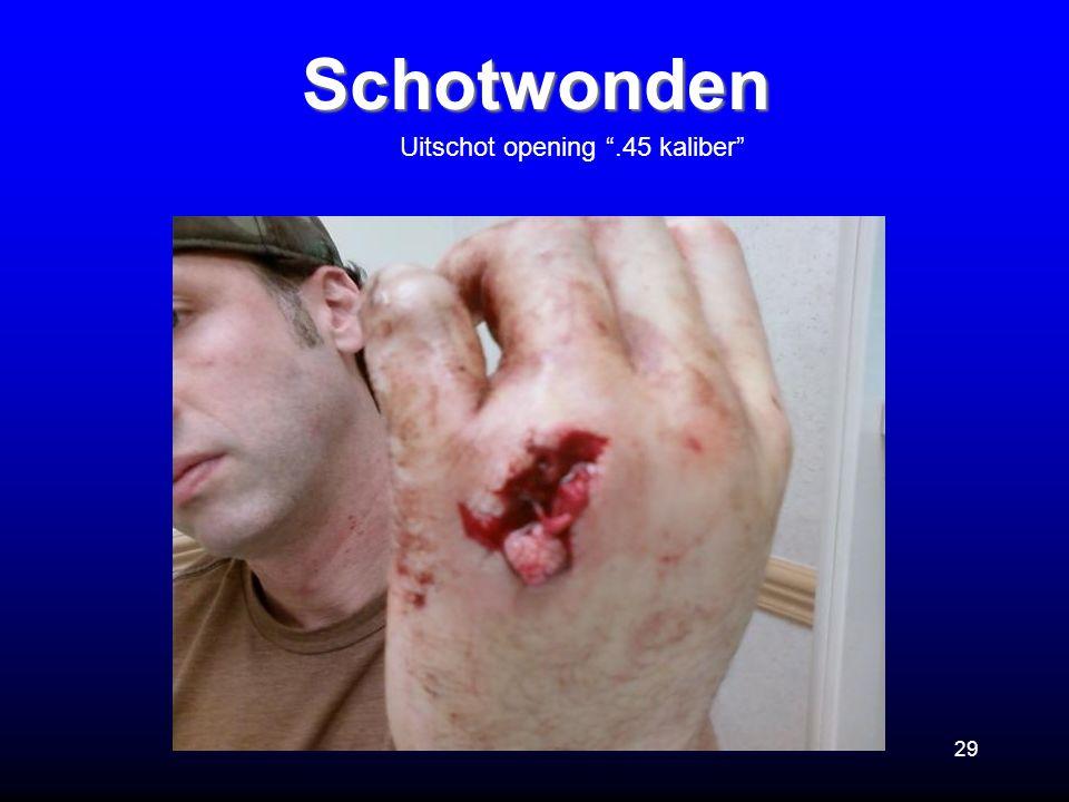 Schotwonden Uitschot opening .45 kaliber