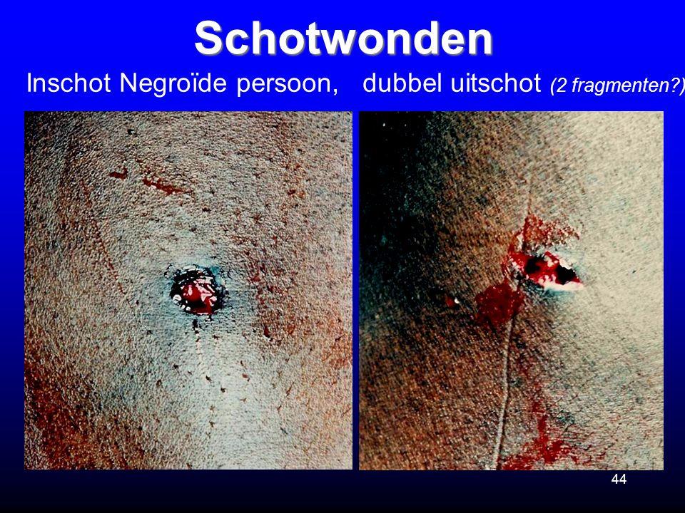 Schotwonden Inschot Negroïde persoon, dubbel uitschot (2 fragmenten )