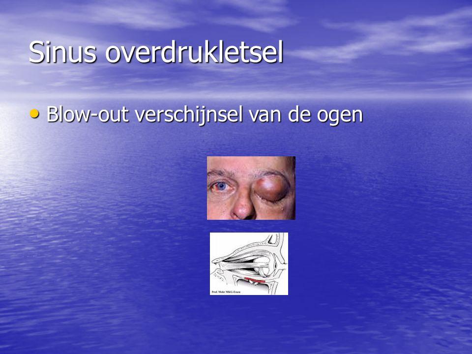 Sinus overdrukletsel Blow-out verschijnsel van de ogen