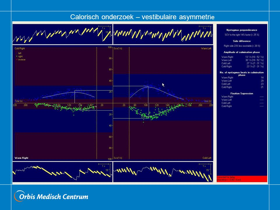 Calorisch onderzoek – vestibulaire asymmetrie