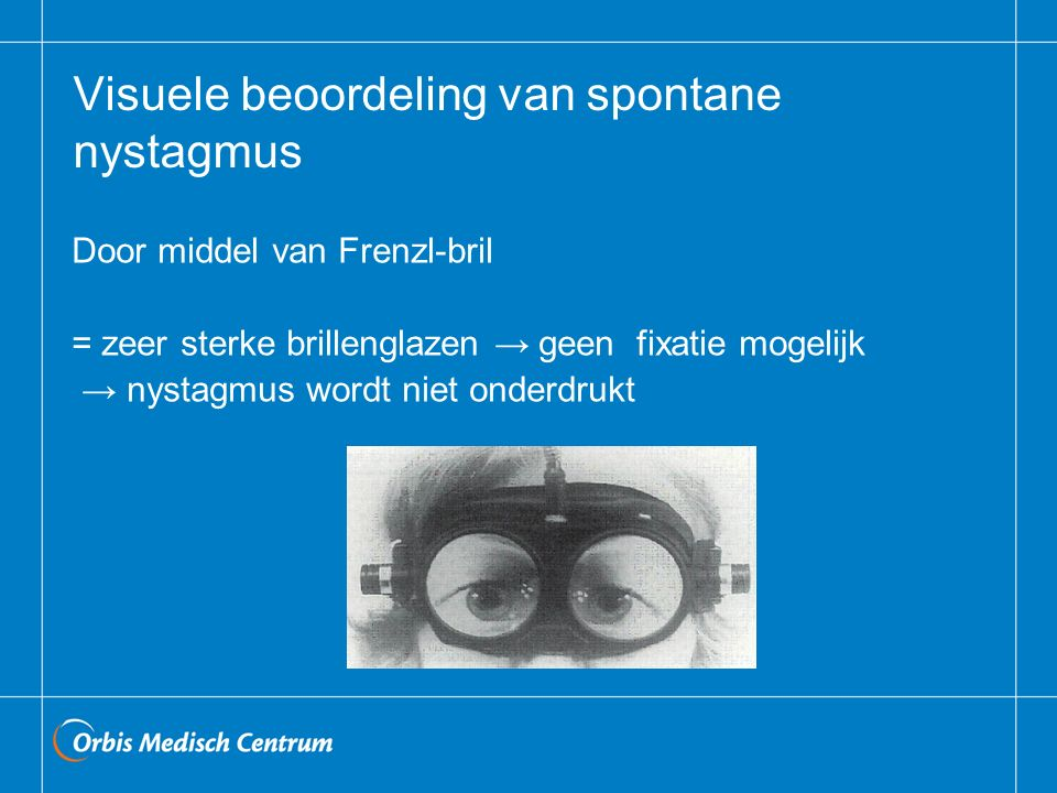 Visuele beoordeling van spontane nystagmus