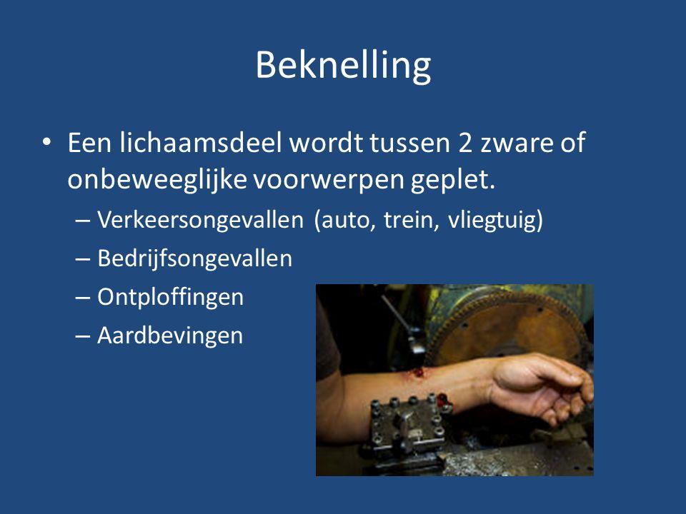 Beknelling Een lichaamsdeel wordt tussen 2 zware of onbeweeglijke voorwerpen geplet. Verkeersongevallen (auto, trein, vliegtuig)