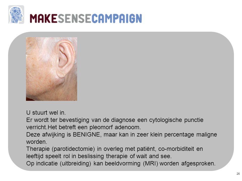 U stuurt wel in. Er wordt ter bevestiging van de diagnose een cytologische punctie verricht.Het betreft een pleomorf adenoom.