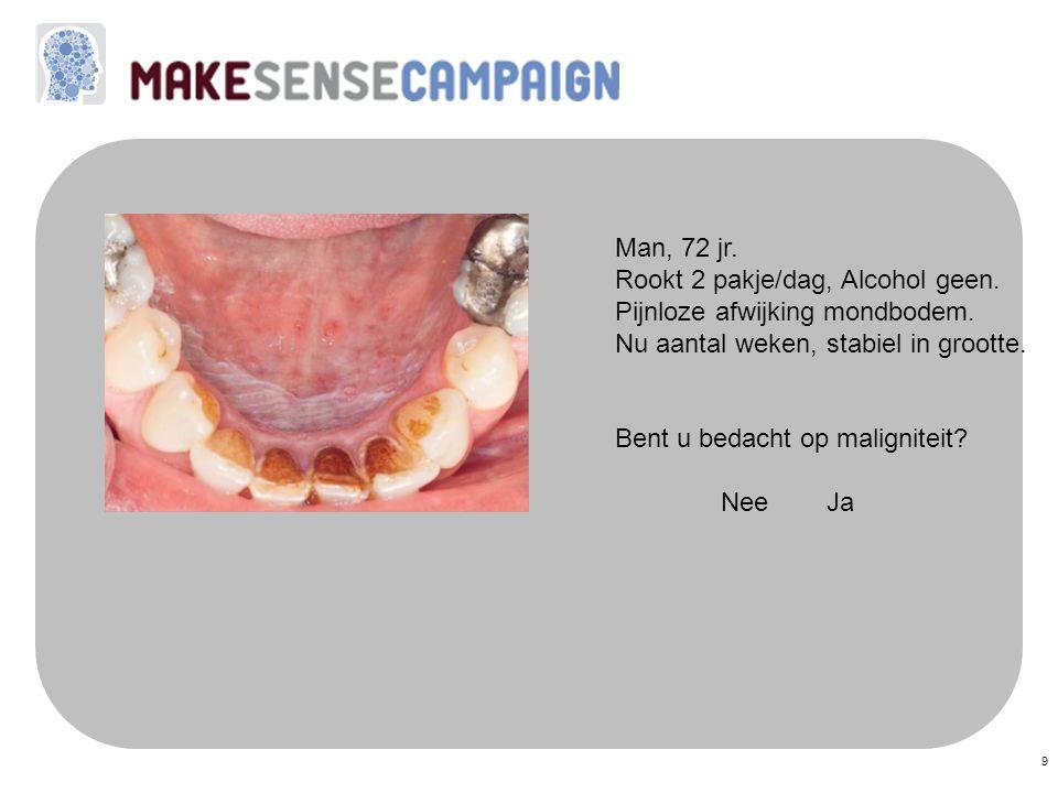 Man, 72 jr. Rookt 2 pakje/dag, Alcohol geen. Pijnloze afwijking mondbodem. Nu aantal weken, stabiel in grootte.
