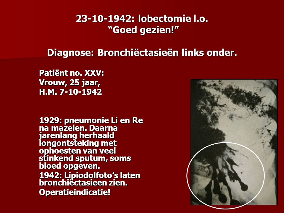23-10-1942: lobectomie l. o. Goed gezien