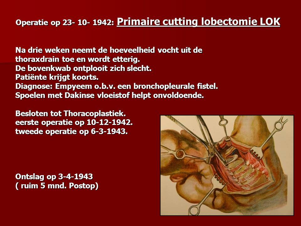 Operatie op 23- 10- 1942: Primaire cutting lobectomie LOK