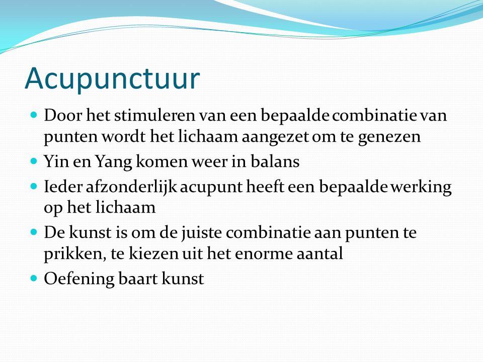 Acupunctuur Door het stimuleren van een bepaalde combinatie van punten wordt het lichaam aangezet om te genezen.