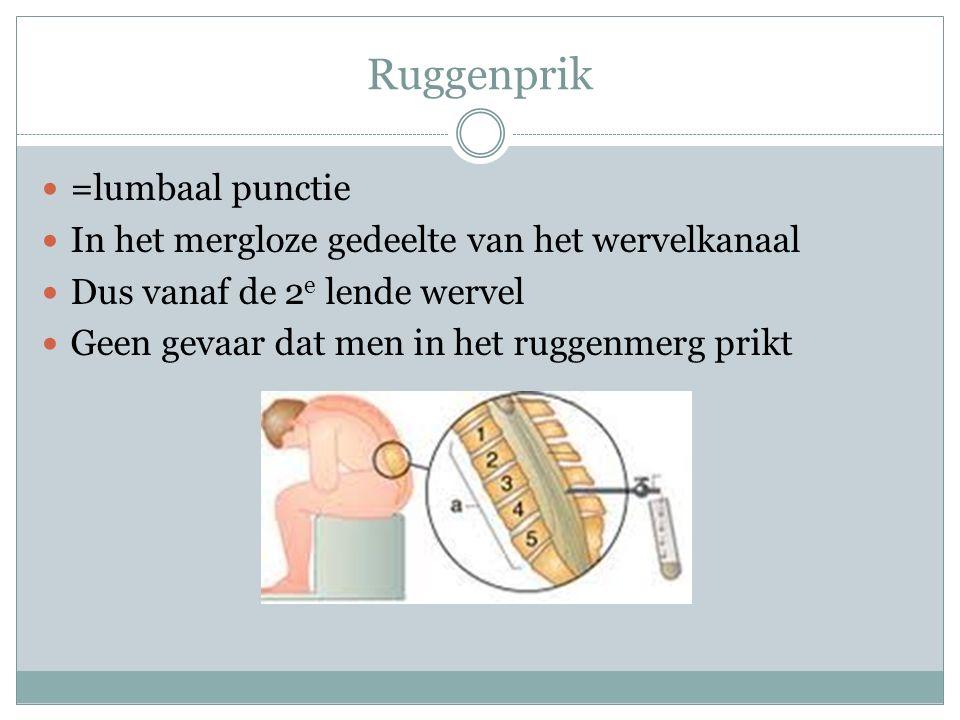Ruggenprik =lumbaal punctie