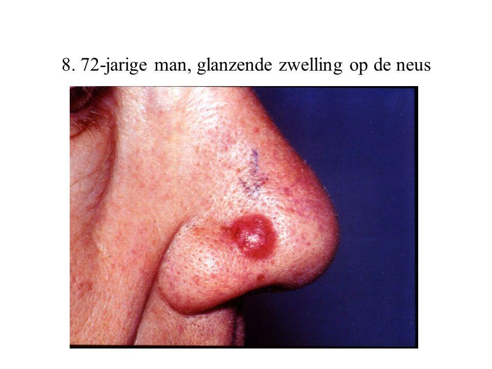 8. 72-jarige man, glanzende zwelling op de neus