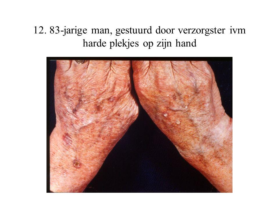 12. 83-jarige man, gestuurd door verzorgster ivm harde plekjes op zijn hand