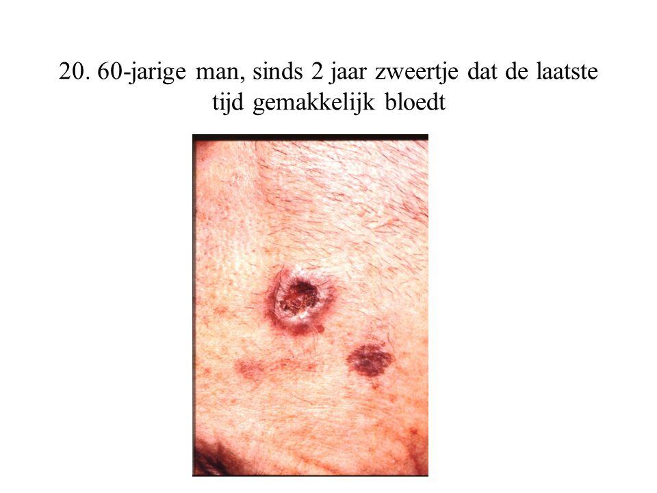 20. 60-jarige man, sinds 2 jaar zweertje dat de laatste tijd gemakkelijk bloedt