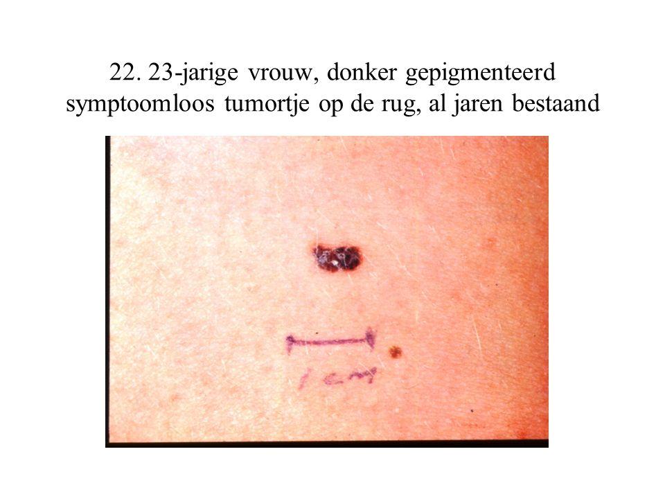 22. 23-jarige vrouw, donker gepigmenteerd symptoomloos tumortje op de rug, al jaren bestaand