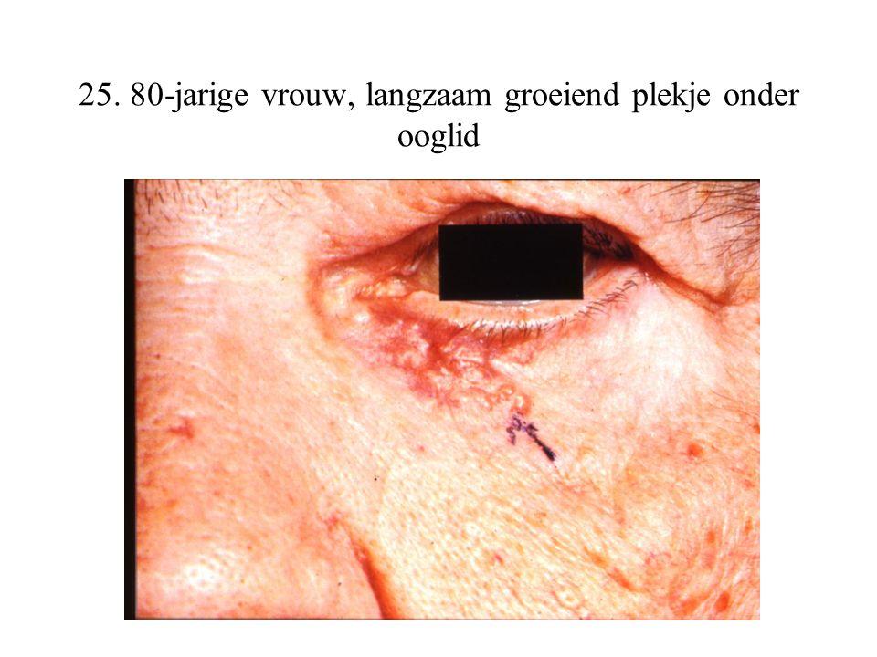 25. 80-jarige vrouw, langzaam groeiend plekje onder ooglid