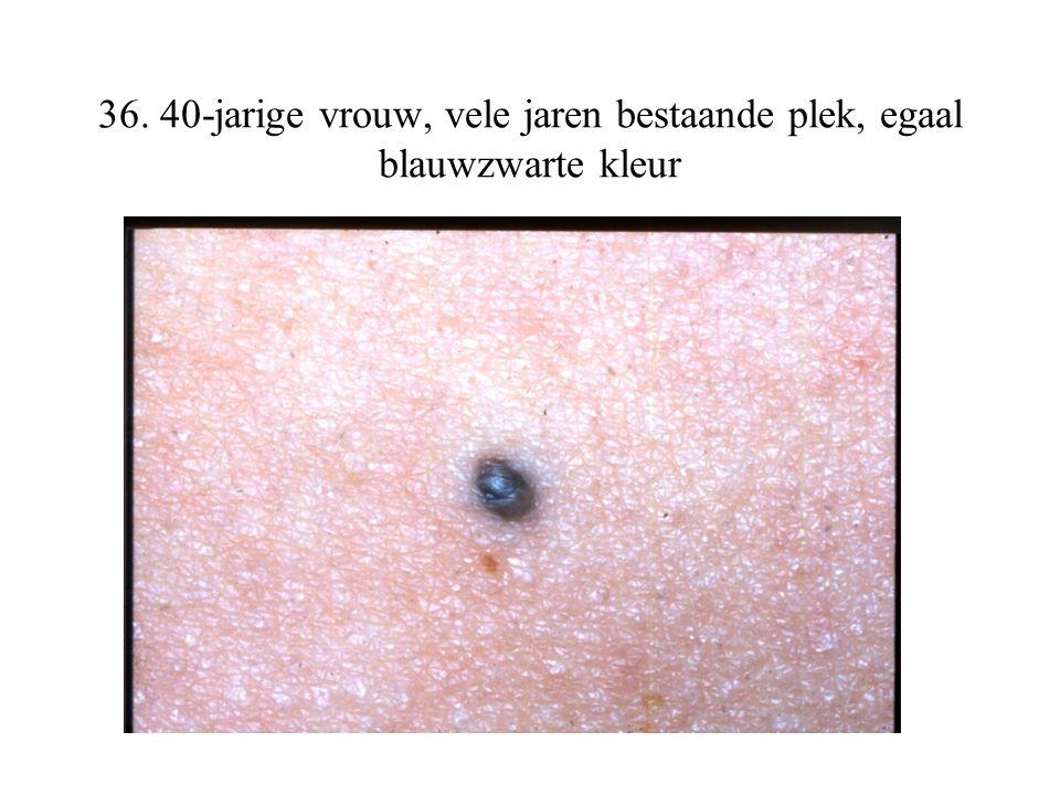 36. 40-jarige vrouw, vele jaren bestaande plek, egaal blauwzwarte kleur