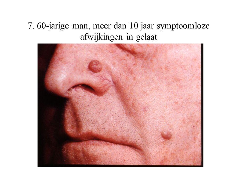 7. 60-jarige man, meer dan 10 jaar symptoomloze afwijkingen in gelaat