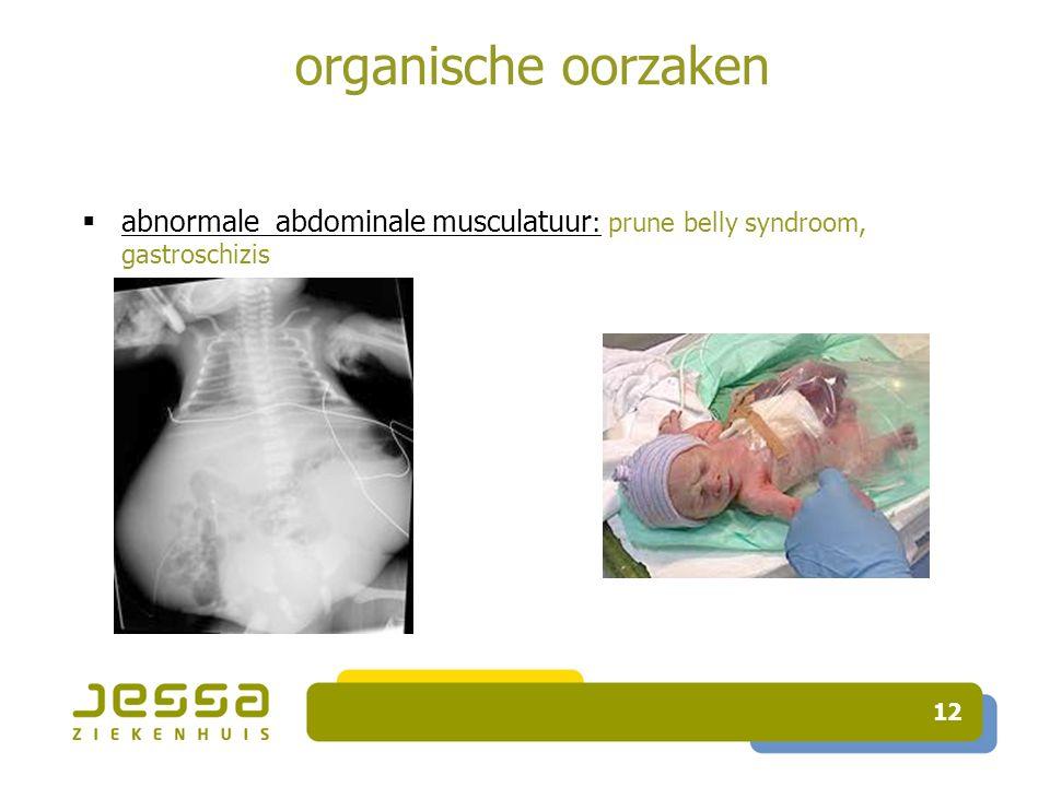 organische oorzaken abnormale abdominale musculatuur: prune belly syndroom, gastroschizis