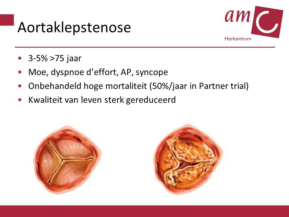 Aortaklepstenose 3-5% >75 jaar Moe, dyspnoe d'effort, AP, syncope