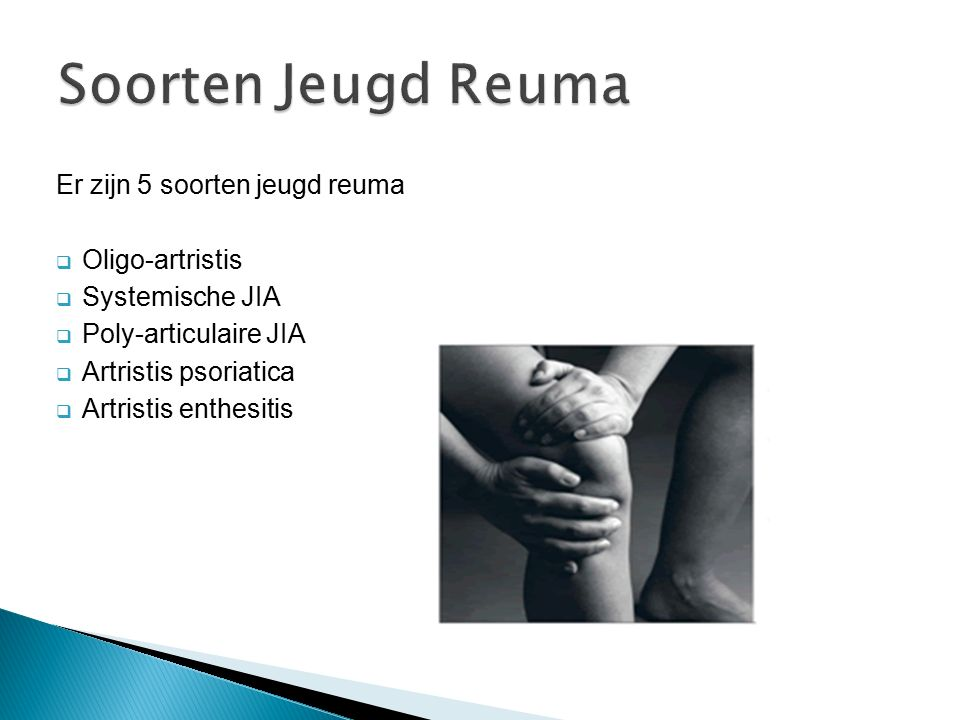 Soorten Jeugd Reuma Er zijn 5 soorten jeugd reuma Oligo-artristis
