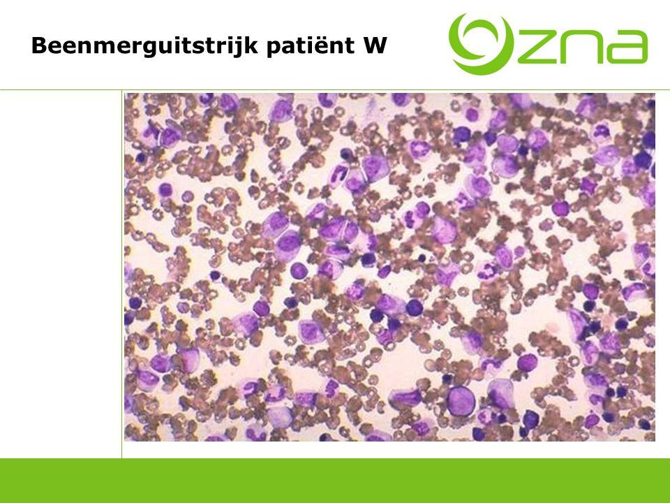 Casus patiënt W Beenmergaspiraat Normocelulair Normale hematopoiese