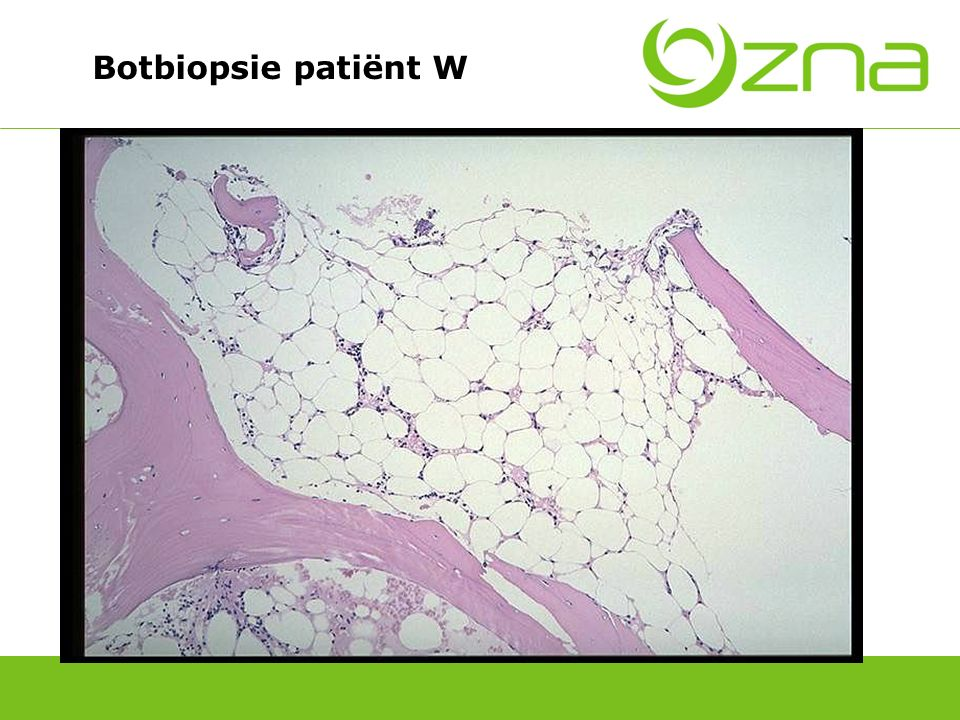 Botbiopsie normaal