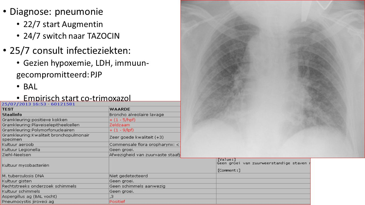 25/7 consult infectieziekten: