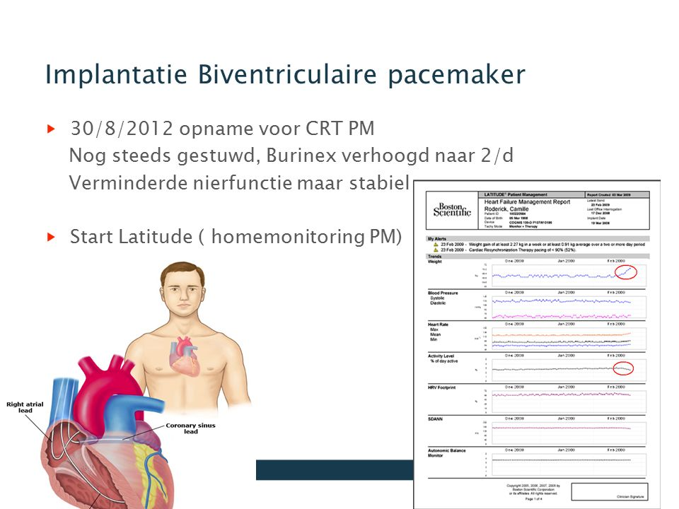 Implantatie Biventriculaire pacemaker
