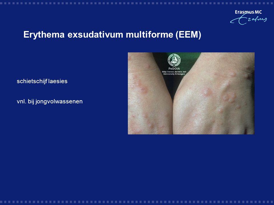 Erythema exsudativum multiforme (EEM)